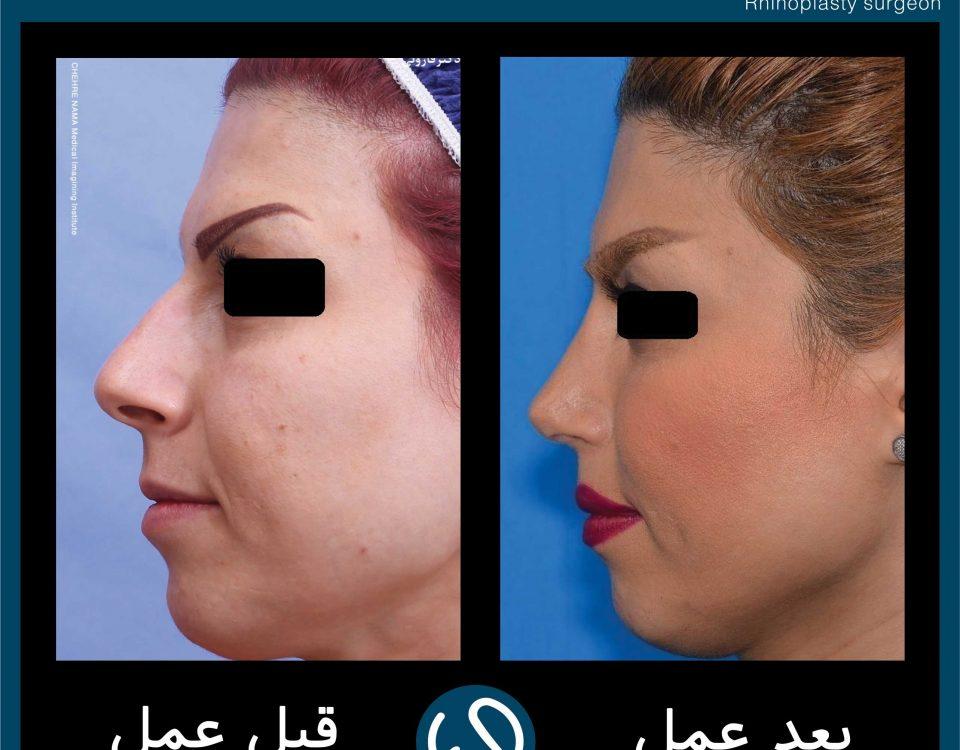 عکس قبل و بعد از عمل 87