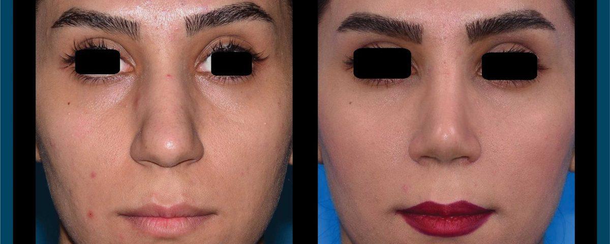 عکس قبل و بعد از عمل 88