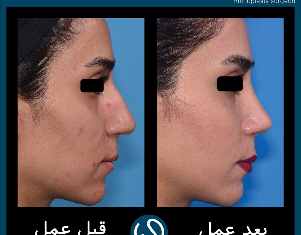 عکس قبل و بعد از عمل 89