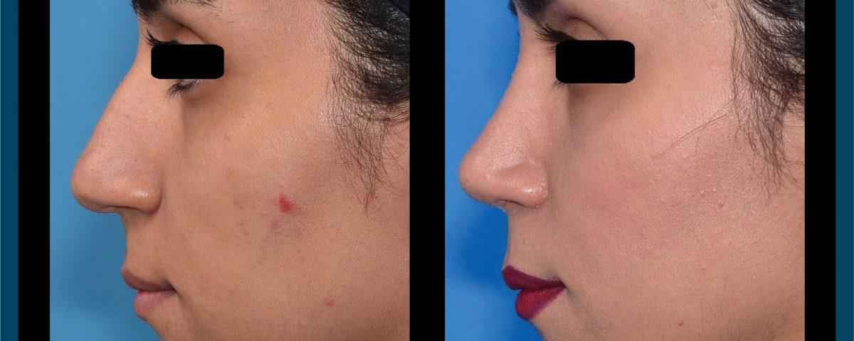 عکس قبل و بعد از عمل 90