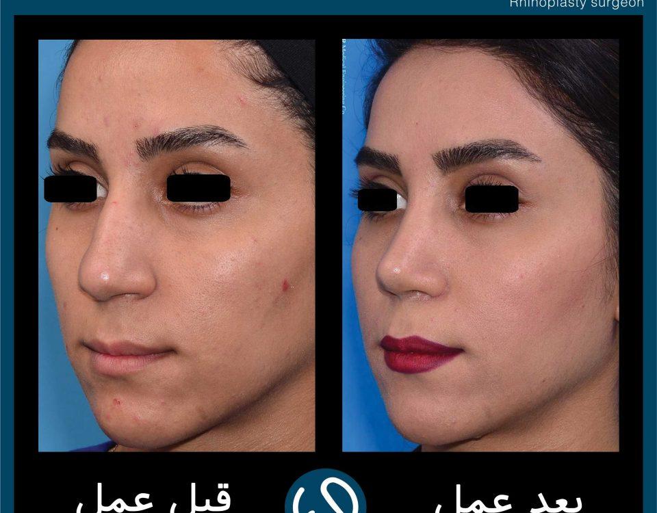 عکس قبل و بعد از عمل 91