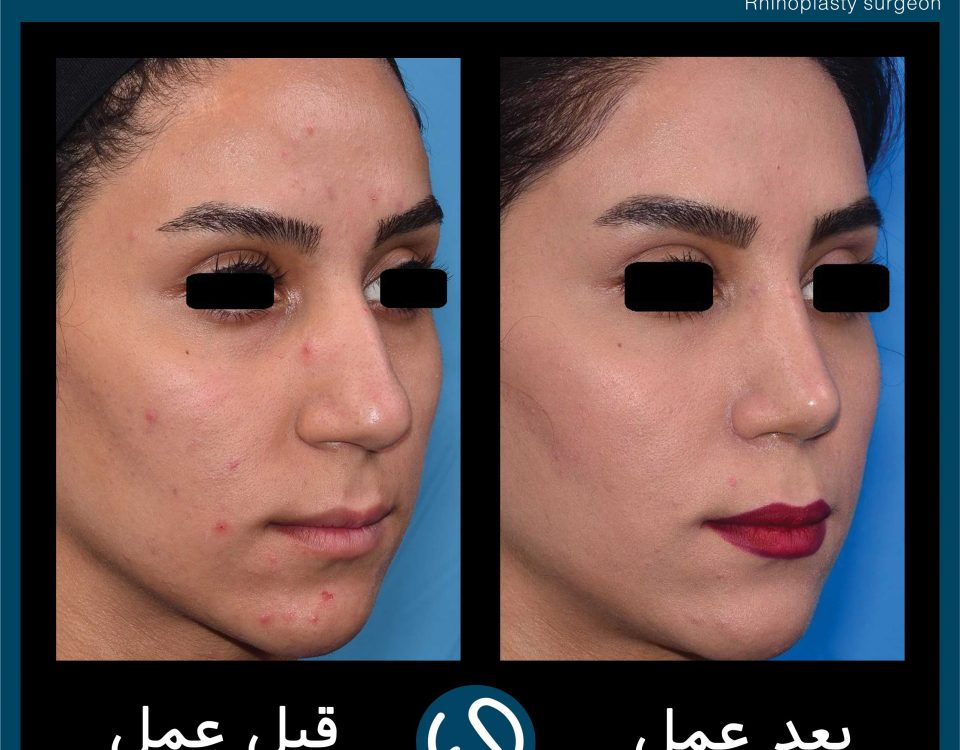 عکس قبل و بعد از عمل 92