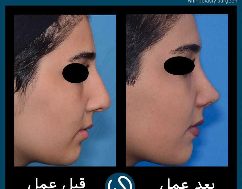 عکس قبل و بعد از عمل 93