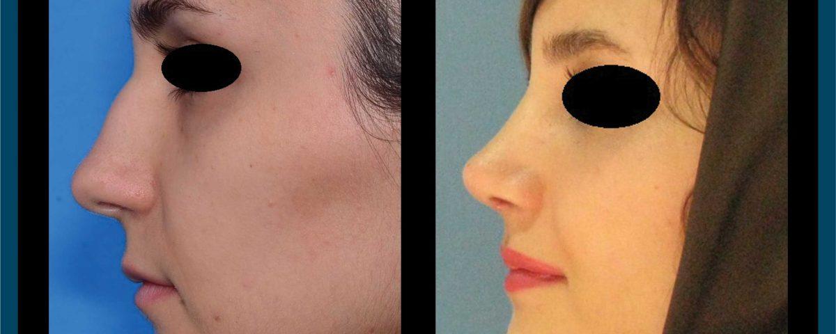 عکس قبل و بعد از عمل 94