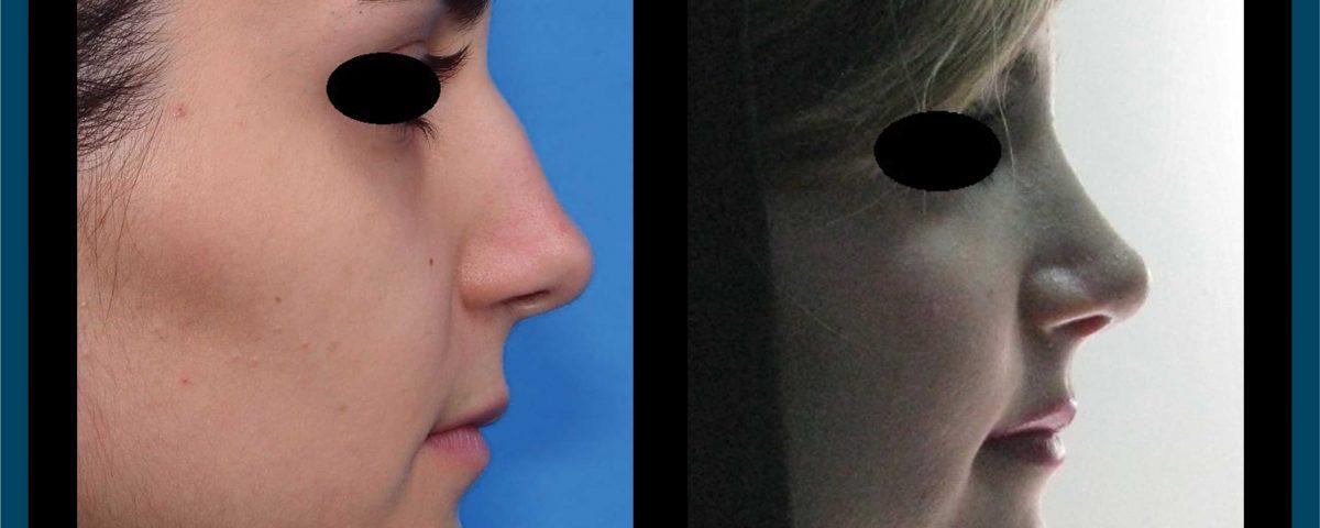 عکس قبل و بعد از عمل 95