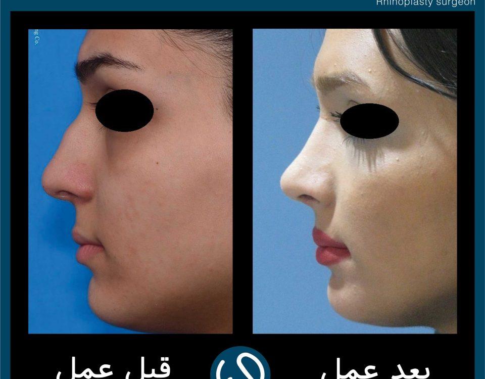عکس قبل و بعد از عمل 98