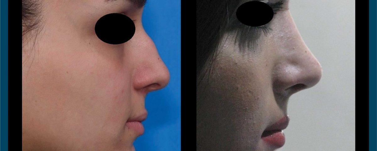 عکس قبل و بعد از عمل 99